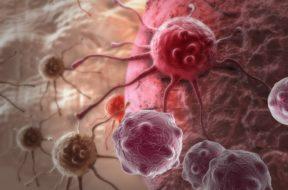 En España desarrollan una inmunoterapia apta para un tipo de cáncer de mama